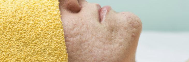 tratar cicatrizes de acne